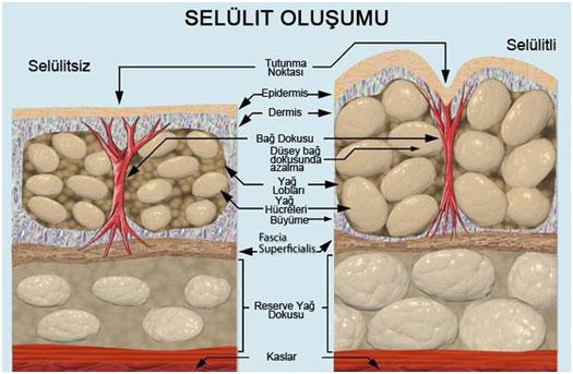 selulit1